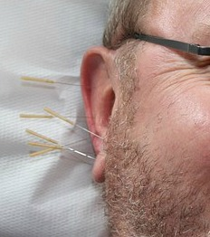 Acupuncture For Infertility Success Rate